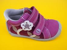b04ddd5768e Detské kožene topanky protetika - samanta purple, protetika,22 / 23 / 24 /