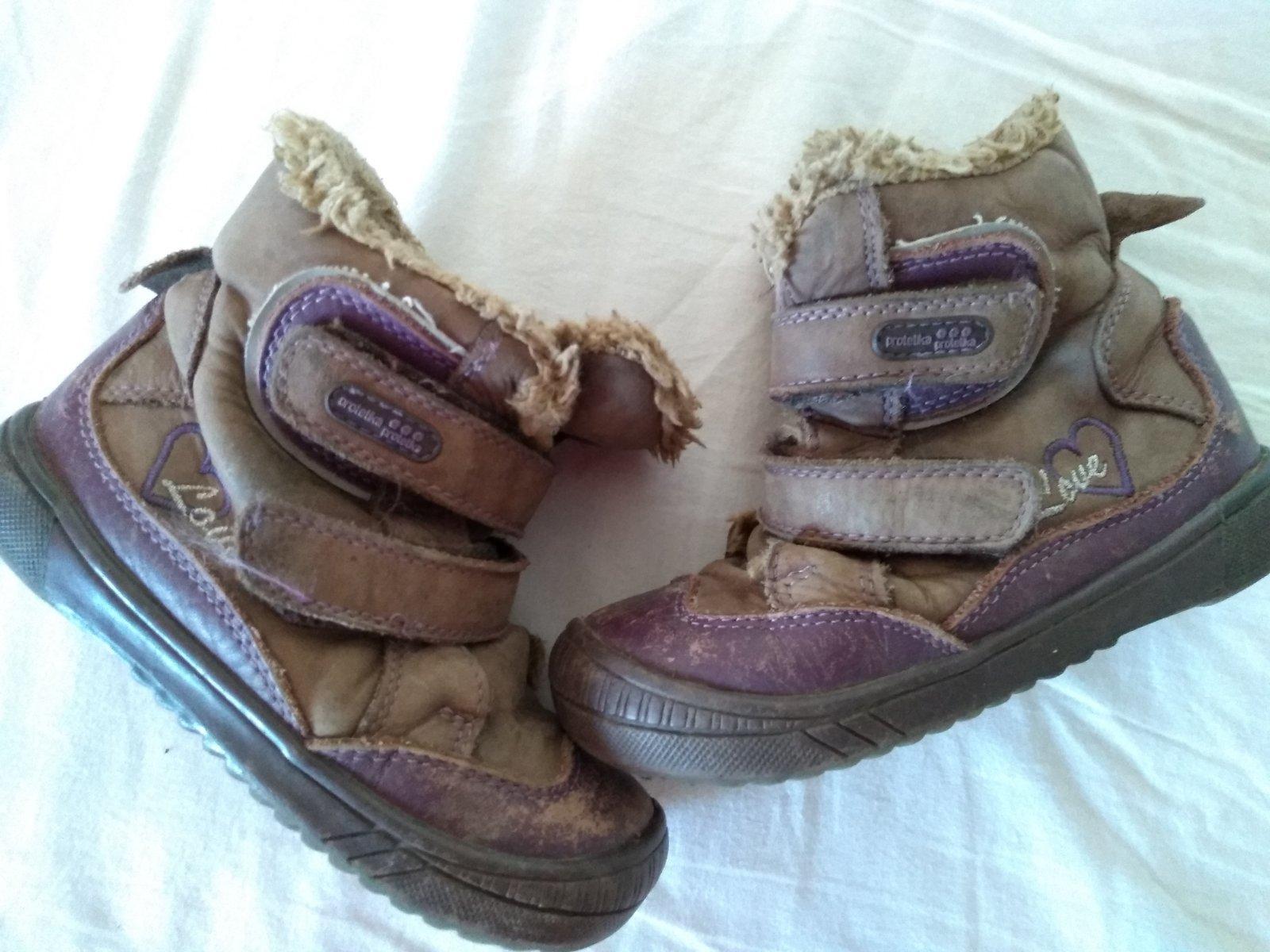 baba5e0b6e Darujem protetika zimné čižmy