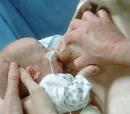 dojčenie je najmenej namáhavé i pre predčasniatko