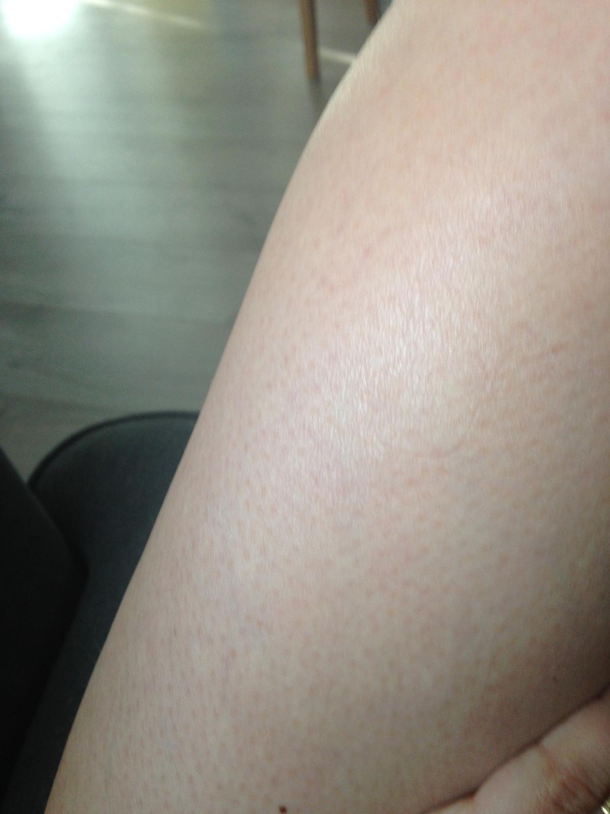 Pre mna je jedinečný z pohladu majiteľky citlivej pokožky - nepodrazdi cc4ad51811